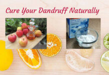 Cure-Your-Dandruff-Narutally